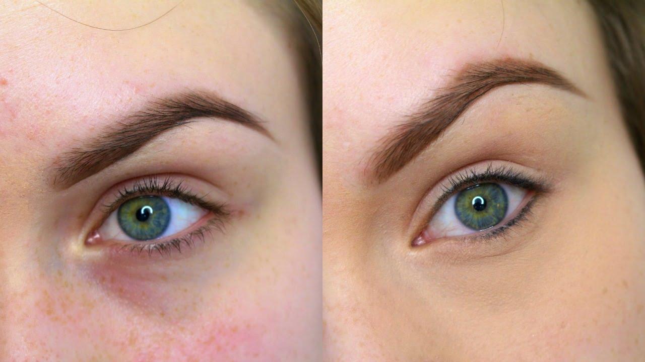 Hyperpigmentation   Bright Skin