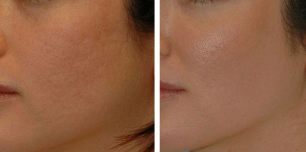 Acne Bright Skin